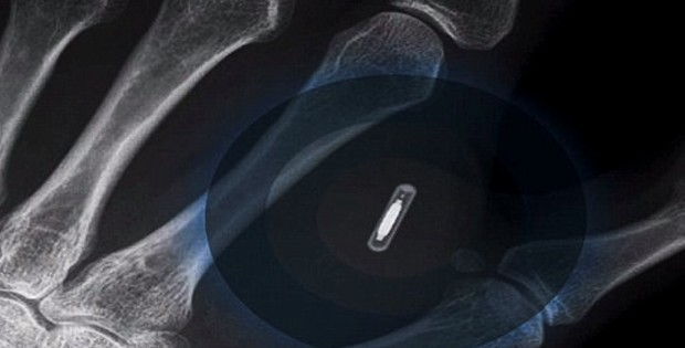 Man Receives RFID Microchip Implant In Back Of Hand To Connect To iPhone 6