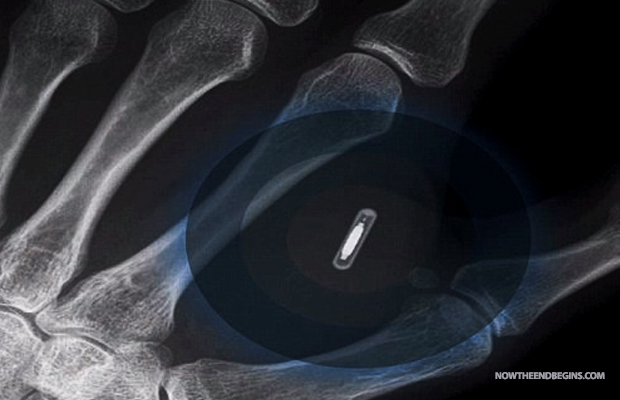 [Imagem: brisbane-man-receives-microchip-implant-...st-666.jpg]