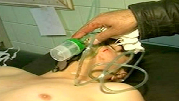 first-chemical-weapon-attack-in-syria-march-19-2013