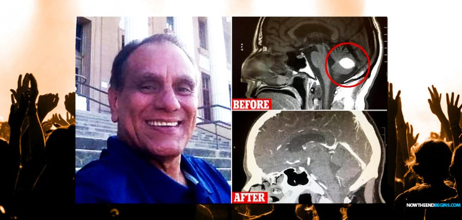 doctors-verify-california-man-brain-tumor-vanishes-after-trusting-god-prayer-church-miracle-healing