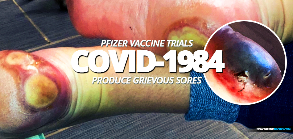 patricia-chandler-pfizer-bionmed-covid-1984-coronavirus-vaccine-trials-produces-grievous-sores-on-feet-fixed-drug-eruption-revelation-16